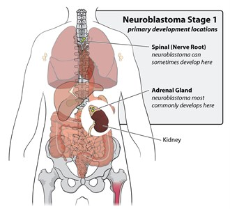 Neuroblastoma Stage 1 primary development locations