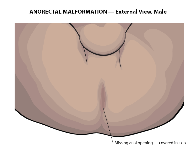 Pediatric Surgery - Anorectal Malformation
