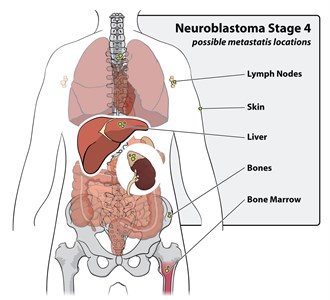 Neuroblastoma Stage 4 possible metastasis locations