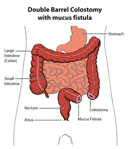 colostomy with mucus fistula