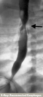 Esophageal Atresia - Xray of reconnection