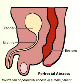 Swelling around the anus and pus coming out